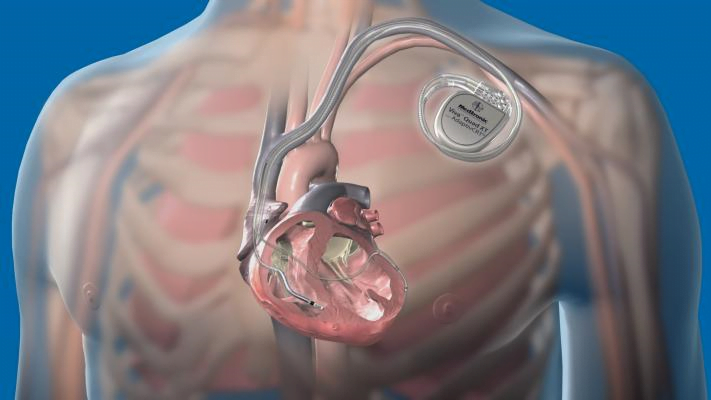 Cardiac implants are devices that are surgically placed in the heart for restoring and assisting regular heart function