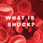 Shock: A state in which there is failure of the circulatory system
