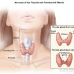 Thyroid disorders | Diagnosis and Treatment