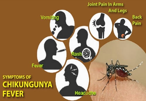 Chikungunya Fever | Causes, manifestation and prevention