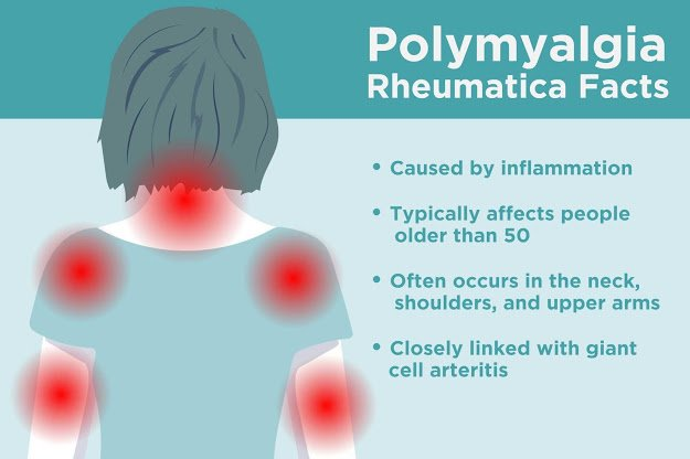 Polymyalgia rheumatic (PMR) | Causes and Treatment