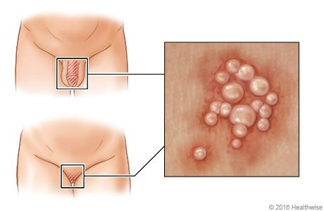 What is genital herpes? | causes | treatment