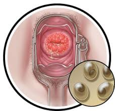 What is Chlamydia | causes | symptoms | treatment