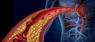 Cholesterol | complications | Risk factors