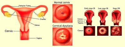 Cervical dysplasia | diagnosis and treatment