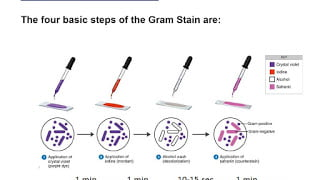 The Gram stain (Clinical laboratory exercise)