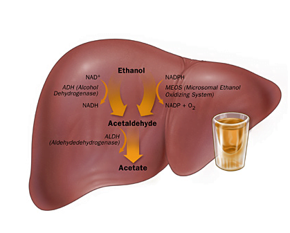 Alcoholic liver disease (ALD) | causes and management