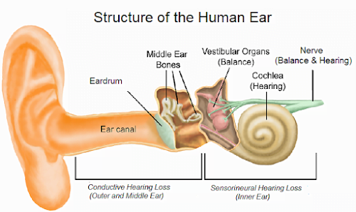 Deafness | Hearing loss | classification and causes