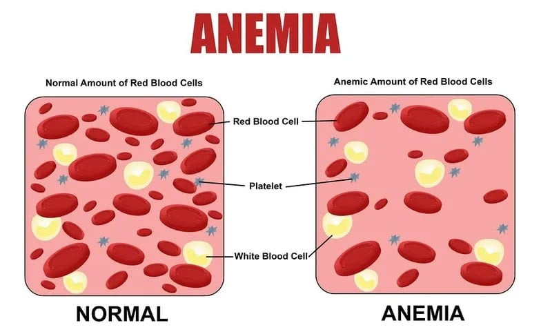 What is Anaemia, causes, symptoms and Treatment