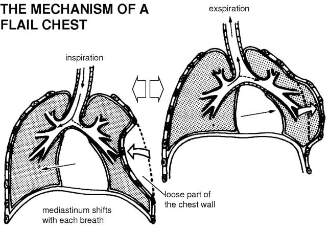 mechanism of flail chest