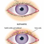 inflammation of the eyelids