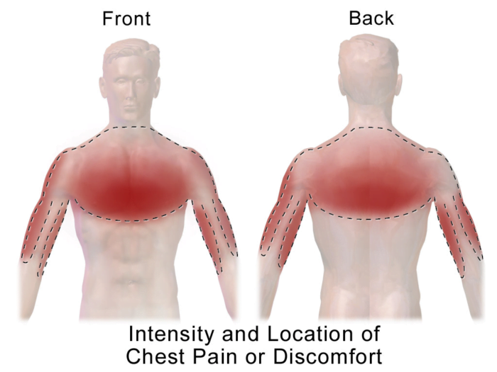 Chest pain (or chest discomfort)