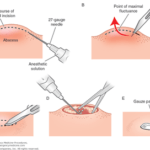 Incision and drainage of abscesses