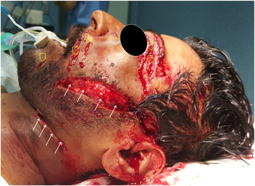 wounds of the face